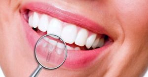 4 posibles complicaciones del implante dental