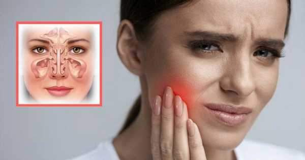 ¿Es posible que la sinusitis genere dolor dental