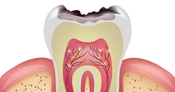 15 causas que provocan caries dentales