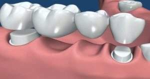 3 diferentes tipos de puentes dentales