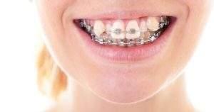 3 formas de corregir los dientes deformes y torcidos