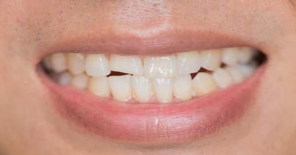 3 formas de reparar un diente quebrado o roto