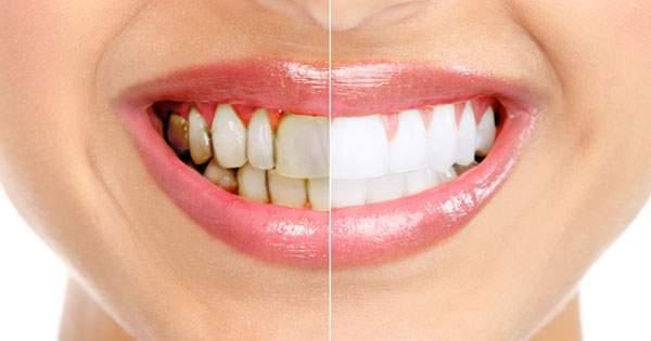 como se quitan las manchas de nicotina de los dientes