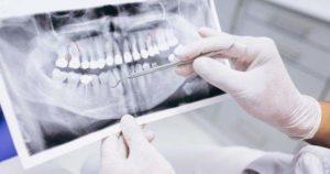 4 tipos de radiografías dentales para niños