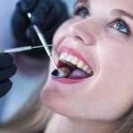 5 beneficios que necesitas saber sobre un seguro dental