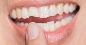 5 causas que producen dientes chuecos o desalineados
