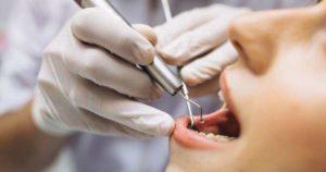 6 efectos secundarios de la limpieza dental profunda