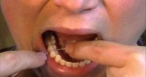 6 pasos para utilizar correctamente hilo dental en las muelas