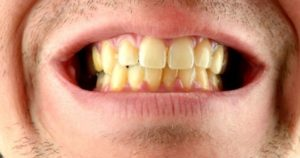 6 razones por las que tus dientes se ponen amarillos