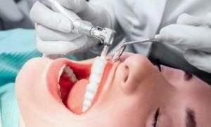 7 beneficios de la limpieza dental ultrasónica
