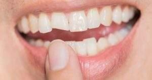 7 recomendaciones en caso de una fractura dental