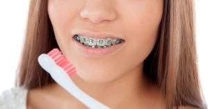 8 piezas que conforman los brackets dentales