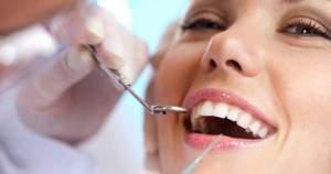 8 preguntas frecuentes sobre la limpieza dental
