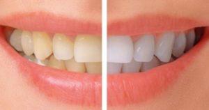9 razones que provocan la decoloración dental