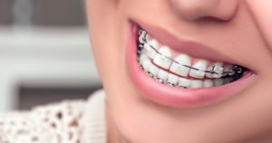 ¿A qué se debe el movimiento de los dientes?