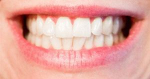 Atención tener dientes blancos no significan que estén sanos