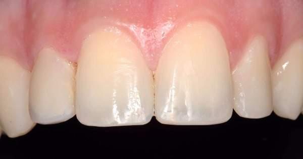 Científicos regeneran dientes con células de las encías