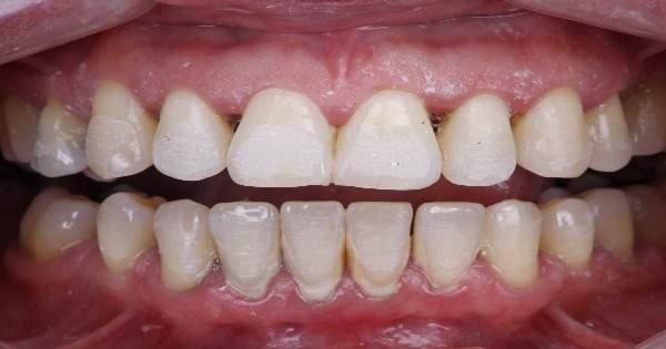 De una dientes despues porque duelen limpieza los