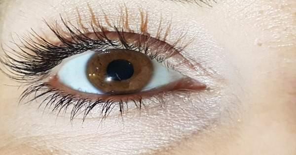 ¿La diabetes causa hipertensión ocular?