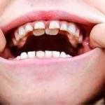 ¿Cómo tratar un diente en el paladar?