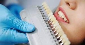 Conoce las desventajas de usar carillas dentales