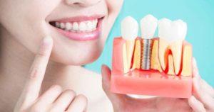 Consejos para elegir implantes dentales