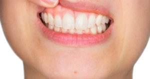 Consejos y tratamiento para la enfermedad de las encías