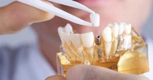 Cosas que debes saber sobre los Implantes dentales