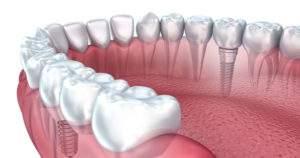¿Cuáles son tus opciones si pierdes un diente?