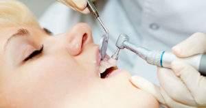 Descubre cómo saber si necesitas una profilaxis dental