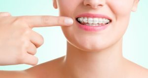 Diferencias entre la ortodoncia removible y la fija