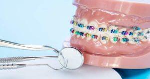 Efecto de elásticos intermaxilares en ortodoncia
