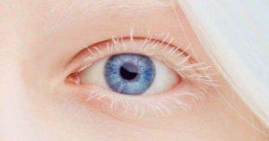 El albinismo y su afectación visual
