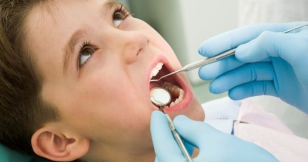 El sellado de dientes y su importancia para prevenir caries en niños