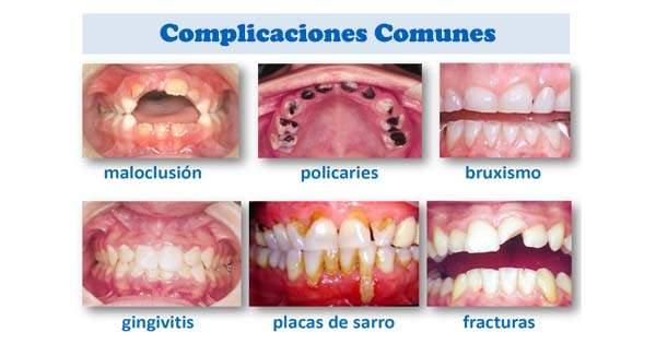 Resultado de imagen de enfermedades dentales
