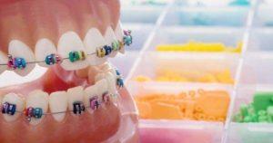 Es necesario quitar las muelas del juicio o premolares para poner brackets