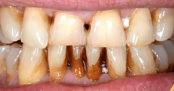 La placa dental y el riesgo de cáncer