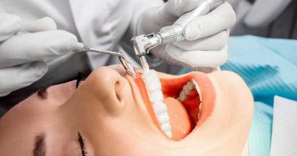Limpieza dental profesional en ninos