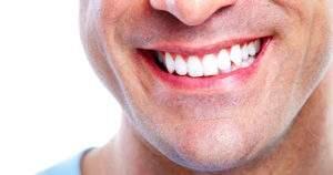 Lo que debes saber sobre la obsesión por los dientes blancos