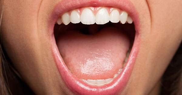 Los 10 síntomas dentales más comunes