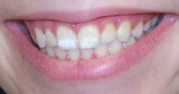 Quitar las manchas de los dientes