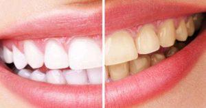 ¿Por qué mis dientes cambiaron de color?