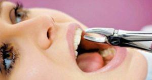 Principales motivos para extraer dientes