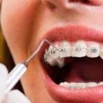 ¿Pueden los brackets provocar la caída de los dientes?