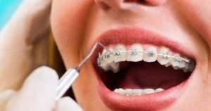 ¿Pueden los brackets provocar la caída de los dientes