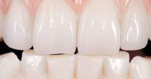 ¿Qué comer durante y después de un blanqueamiento dental?