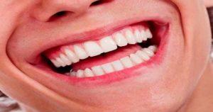 ¿Qué es el síndrome del diente fisurado?