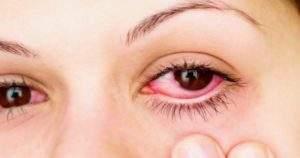 Qué es la conjuntivitis y cómo puede ser tratada