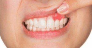 ¿Qué es un flemón dental?