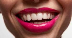¿Qué provoca los dientes astillados? Señales y tratamiento